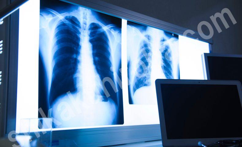 診療放射線技師 資格