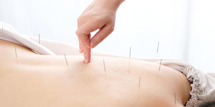鍼灸師の仕事内容